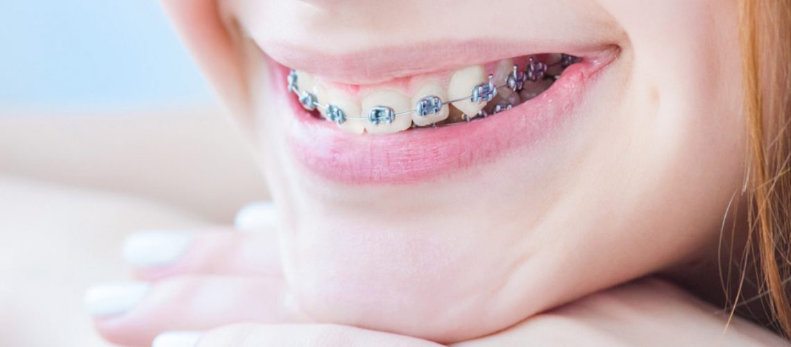 orthodontic-myths-facts-1280x720